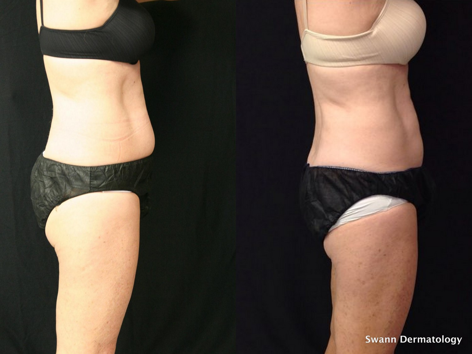 2 Coolsculpting sessions of lower abdomen only